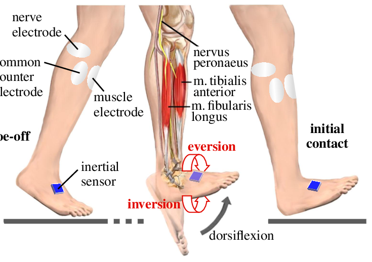 Drop-foot-treatment-by-functional-electrical-stimulation-of-the-nerve-and-the-muscles